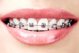 zobni-aparati